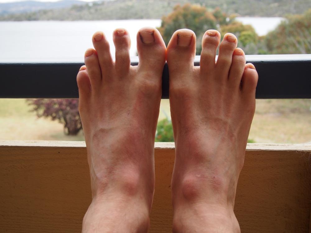 ...the feet....